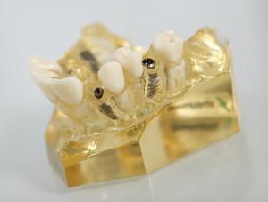 Zahnimplantate im Modellkiefer. Die von uns genutzten Implantat-Systeme sind wissenschaftlich getestet und langjährig erprobt.