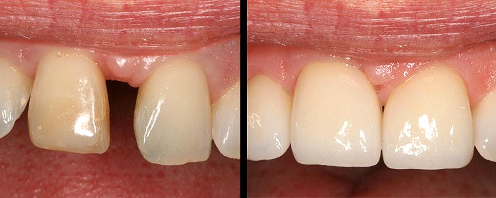 Parodontitis und ihre Therapiemöglichkeiten