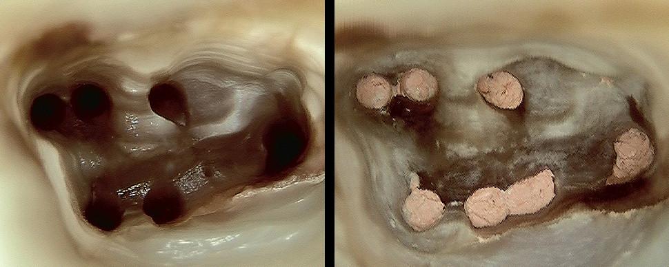 Ziel der Wurzelkanalbehandlung ist die Entfernung der Bakterien und der dreidimensionale Verschluss der Hohlräume im Zahninneren