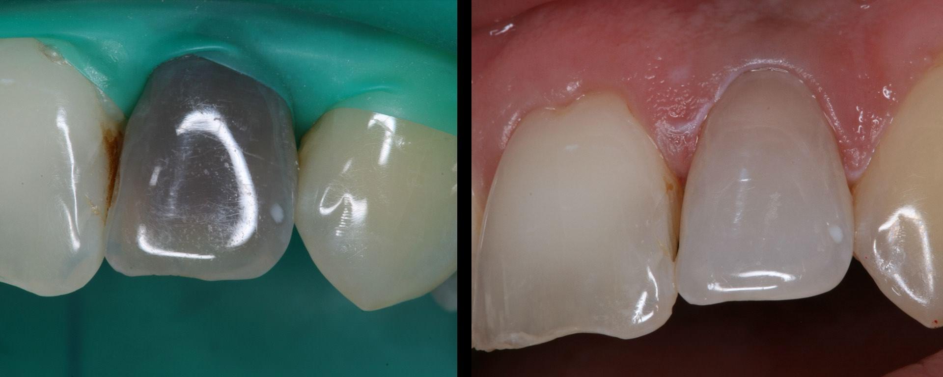 Auch herausgefallene Zähne können häufig replantiert werden.